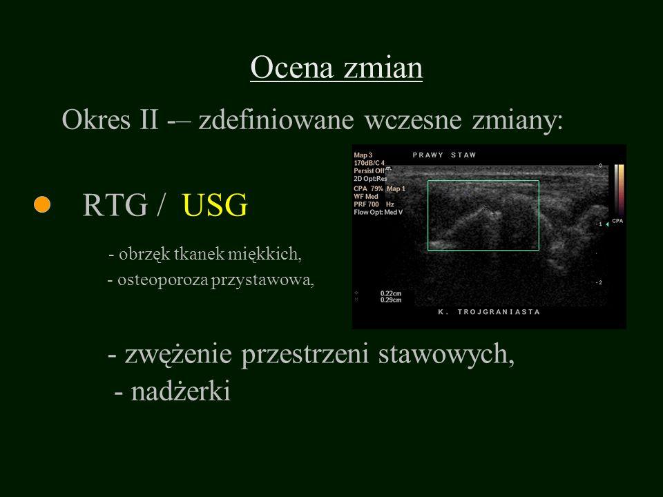 RTG / - osteoporoza przystawowa, - zwężenie przestrzeni stawowych, USG