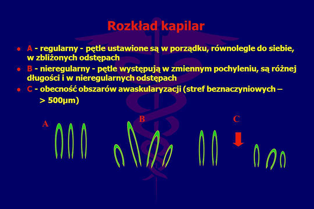 Rozkład kapilar A - regularny - pętle ustawione są w porządku, równolegle do siebie, w zbliżonych odstępach.