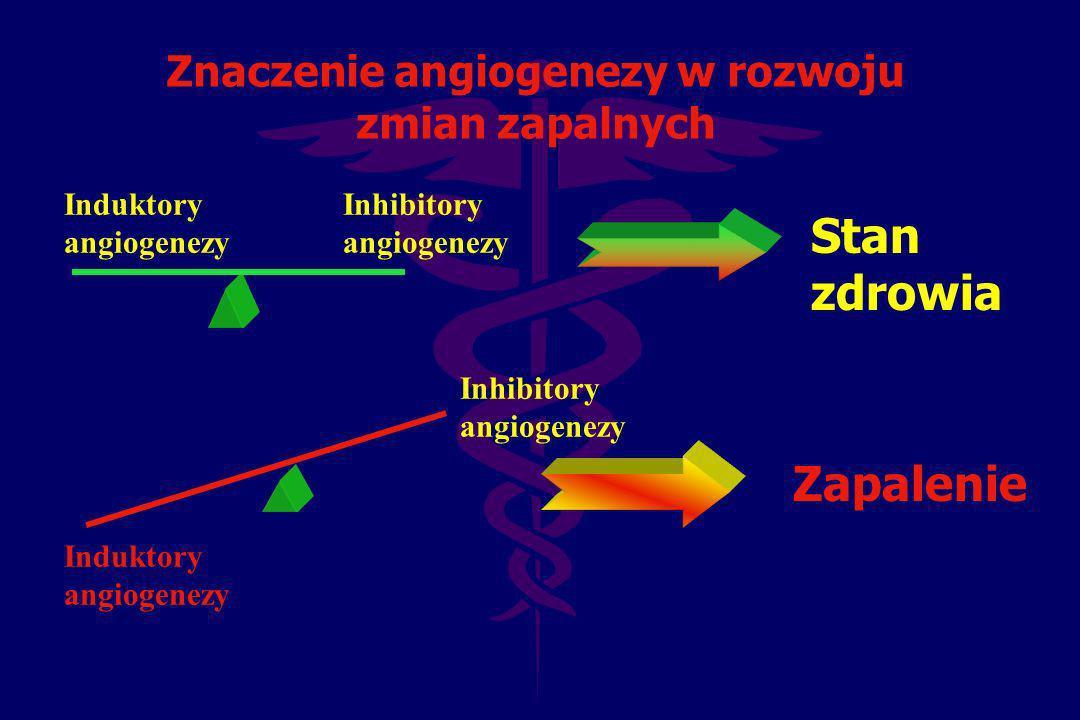 Znaczenie angiogenezy w rozwoju zmian zapalnych