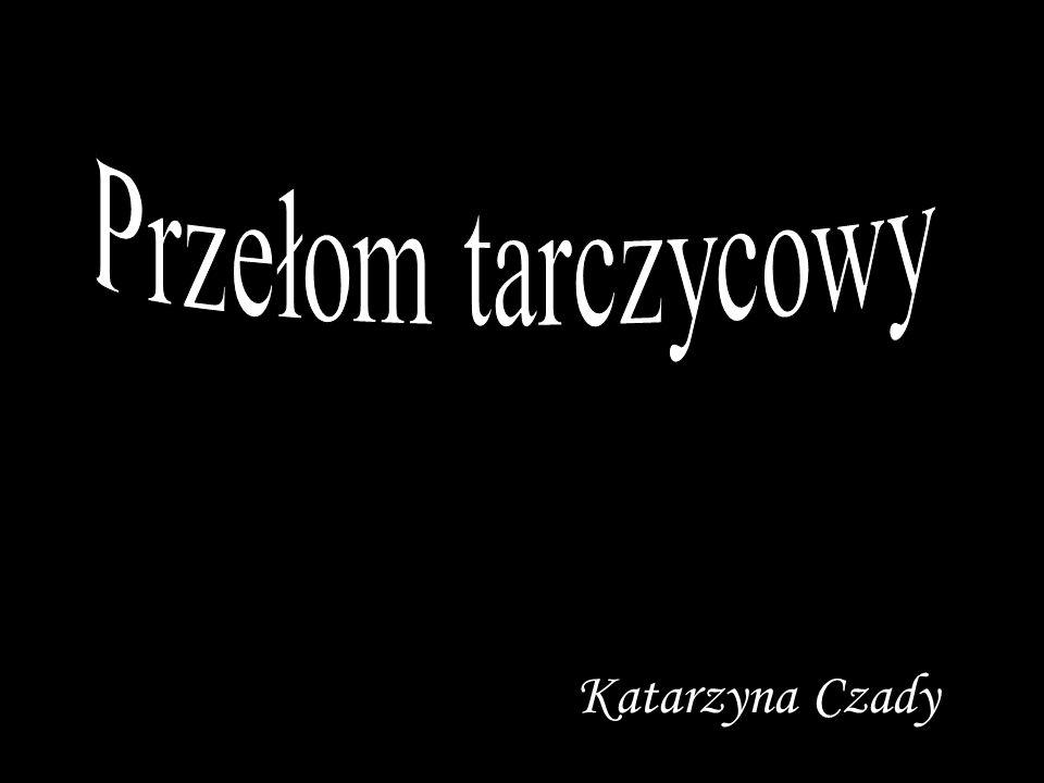 Przełom tarczycowy Katarzyna Czady