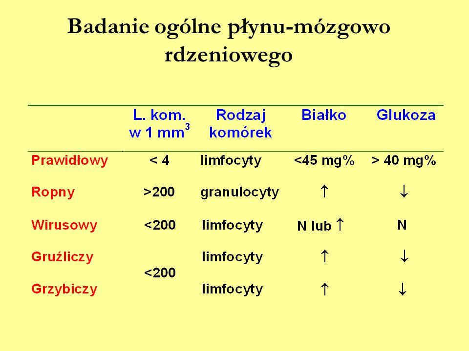 Badanie ogólne płynu-mózgowo rdzeniowego