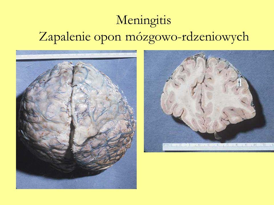 Meningitis Zapalenie opon mózgowo-rdzeniowych