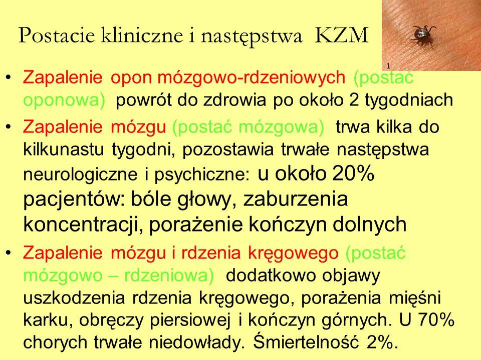 Postacie kliniczne i następstwa KZM