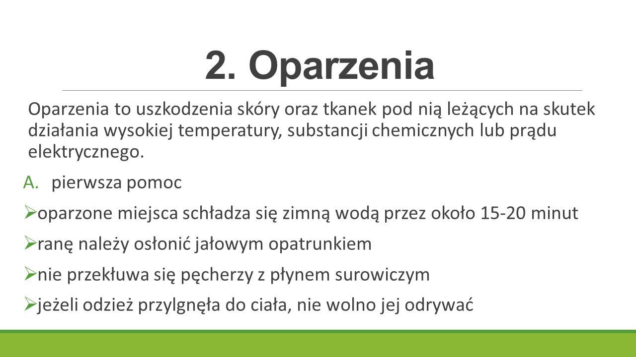 2. Oparzenia