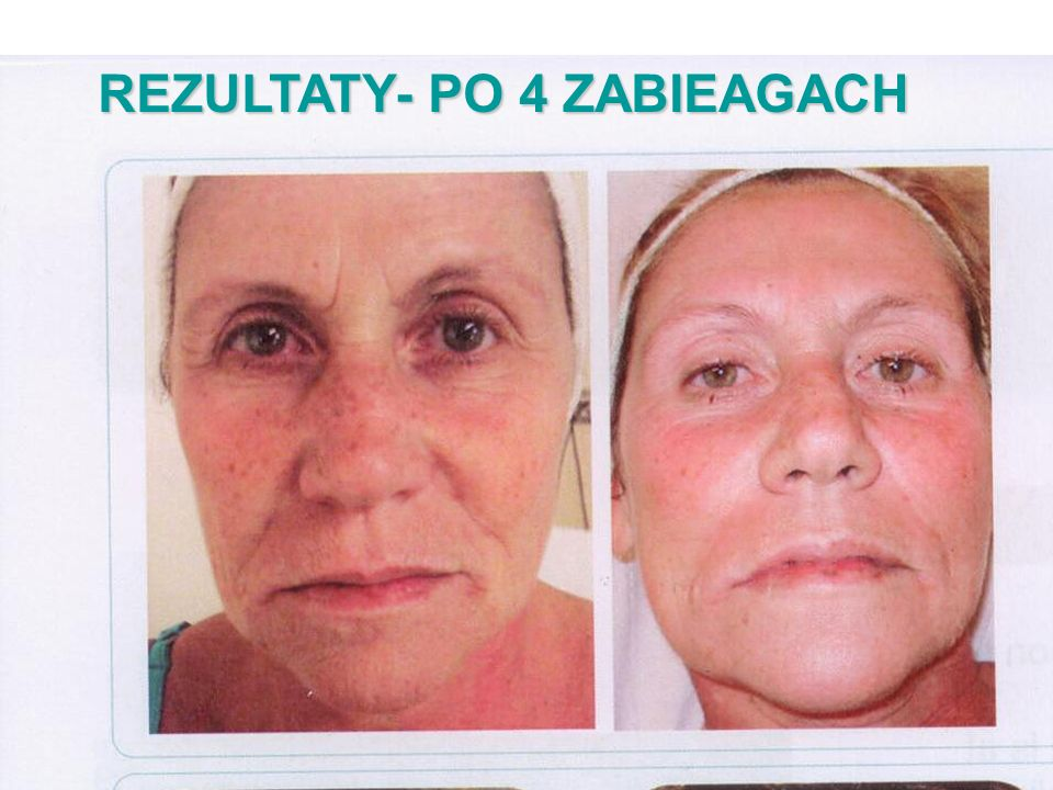 REZULTATY- PO 4 ZABIEAGACH