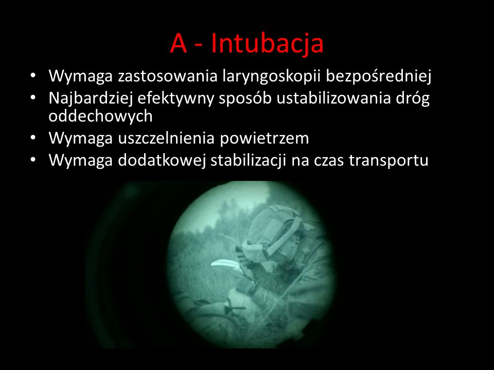 A - Intubacja Wymaga zastosowania laryngoskopii bezpośredniej