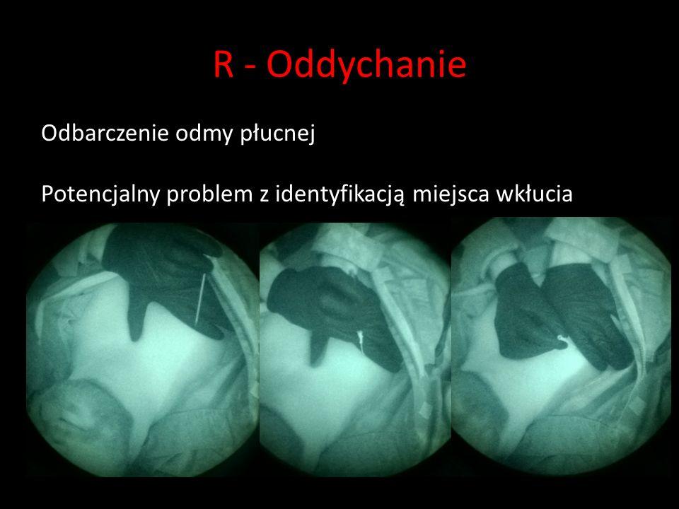 R - Oddychanie Odbarczenie odmy płucnej Potencjalny problem z identyfikacją miejsca wkłucia