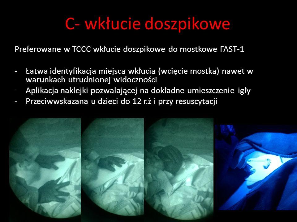 C- wkłucie doszpikowe Preferowane w TCCC wkłucie doszpikowe do mostkowe FAST-1.