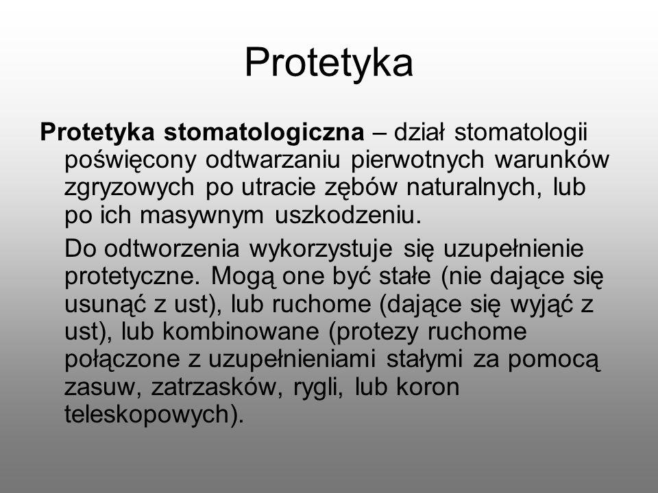 Protetyka