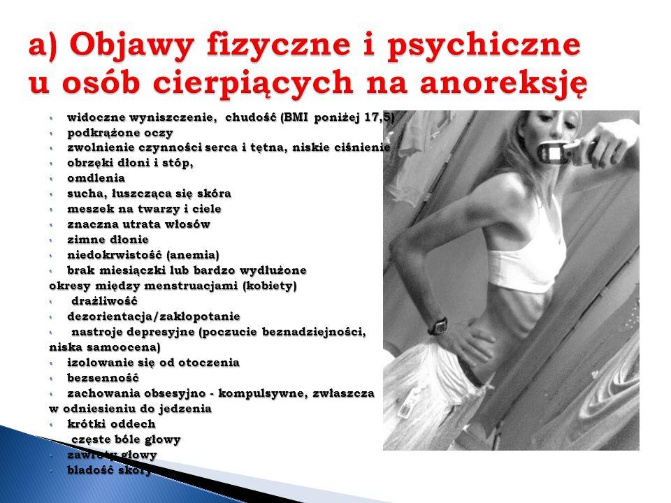 a) Objawy fizyczne i psychiczne u osób cierpiących na anoreksję