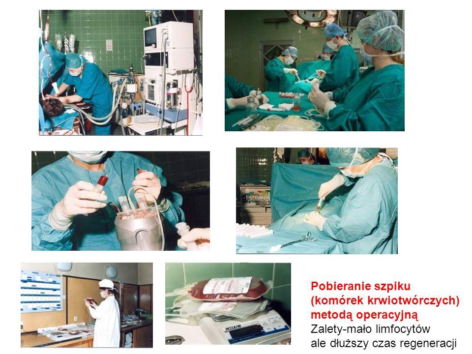Pobieranie szpiku (komórek krwiotwórczych) metodą operacyjną.