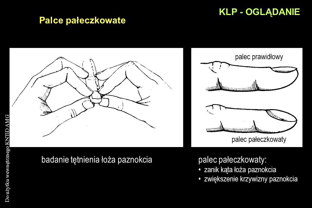 badanie tętnienia łoża paznokcia palec pałeczkowaty: