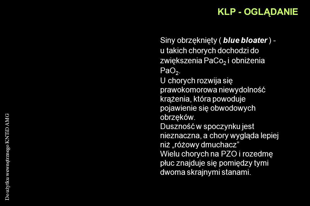 KLP - OGLĄDANIE Siny obrzęknięty ( blue bloater ) - u takich chorych dochodzi do zwiększenia PaCo2 i obniżenia PaO2.