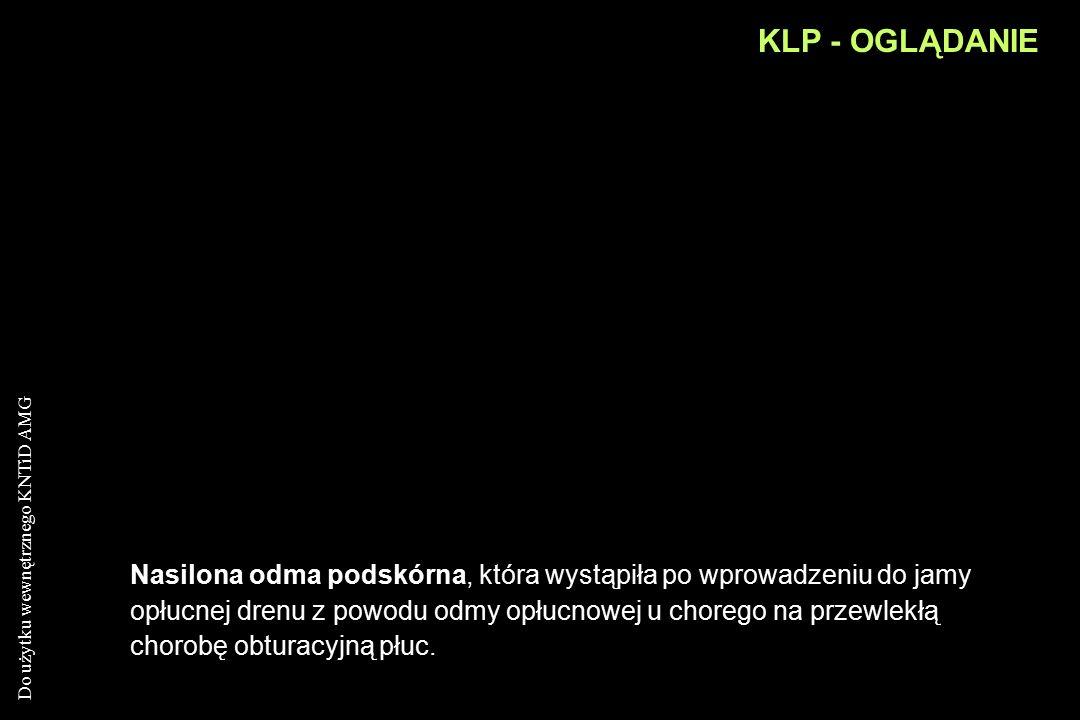 KLP - OGLĄDANIE