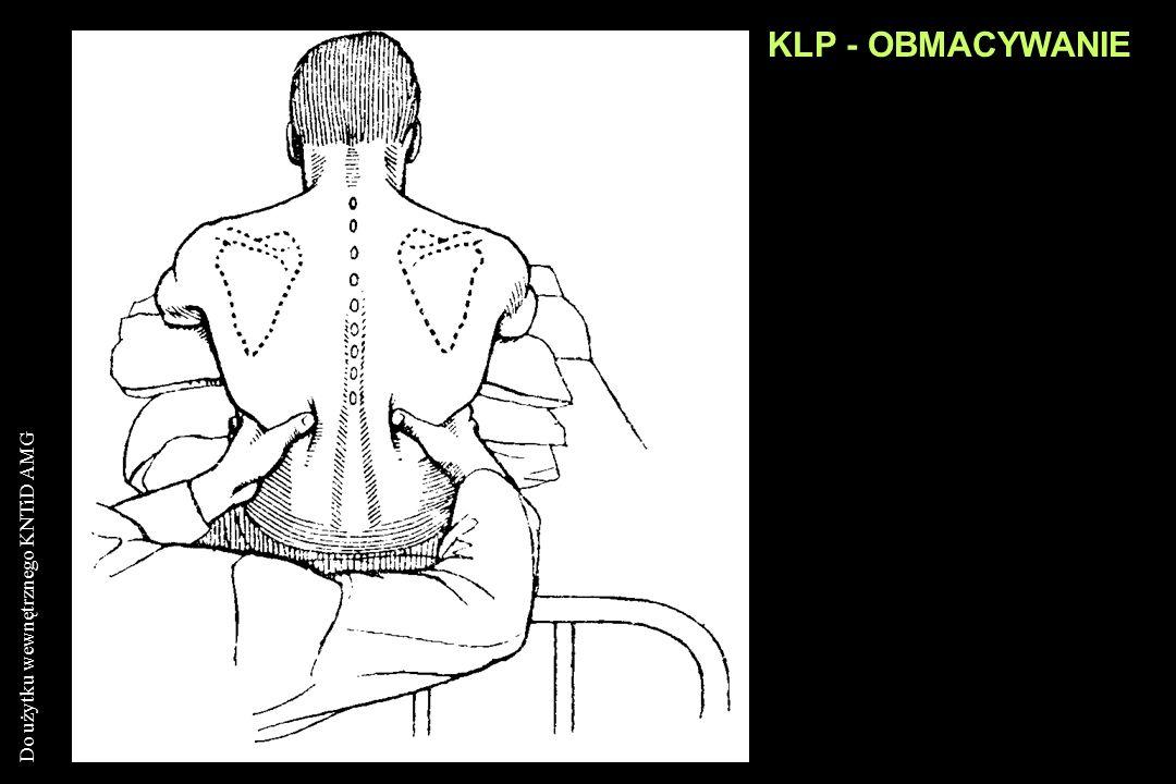 KLP - OBMACYWANIE
