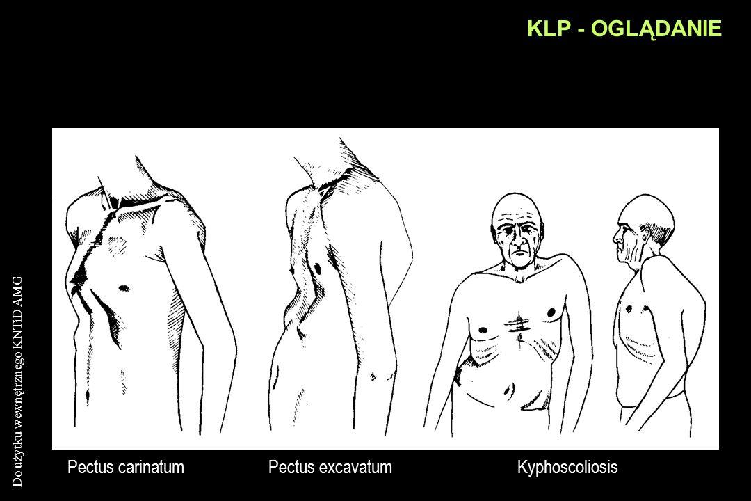 KLP - OGLĄDANIE Pectus carinatum Pectus excavatum Kyphoscoliosis