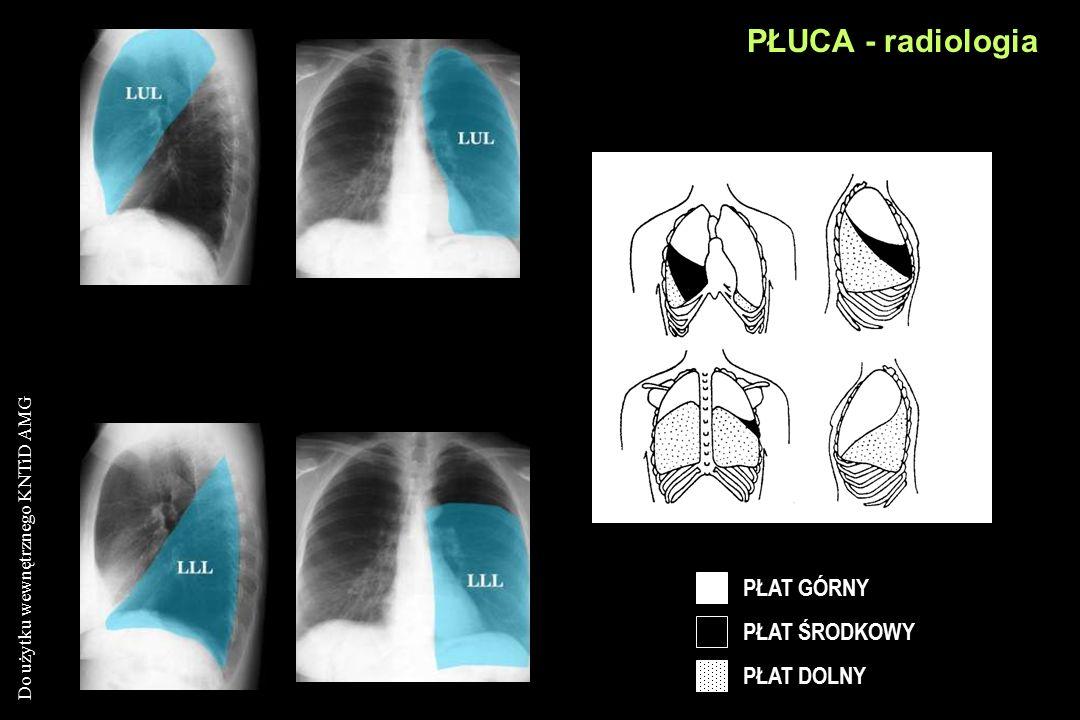 PŁUCA - radiologia PŁAT GÓRNY PŁAT ŚRODKOWY PŁAT DOLNY