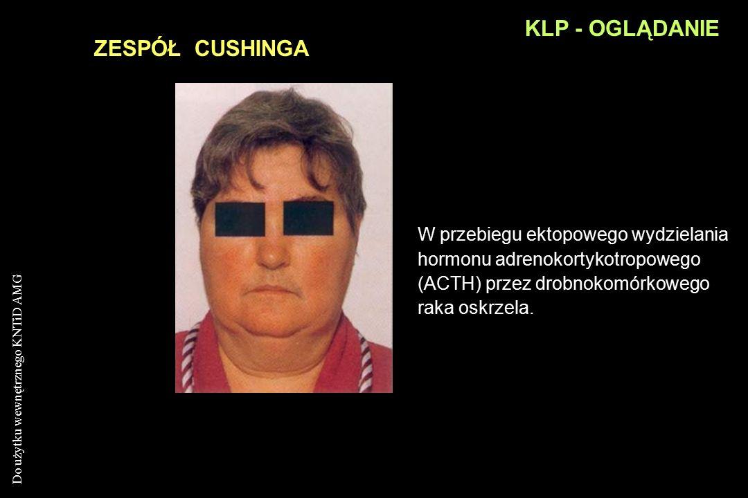 KLP - OGLĄDANIE ZESPÓŁ CUSHINGA