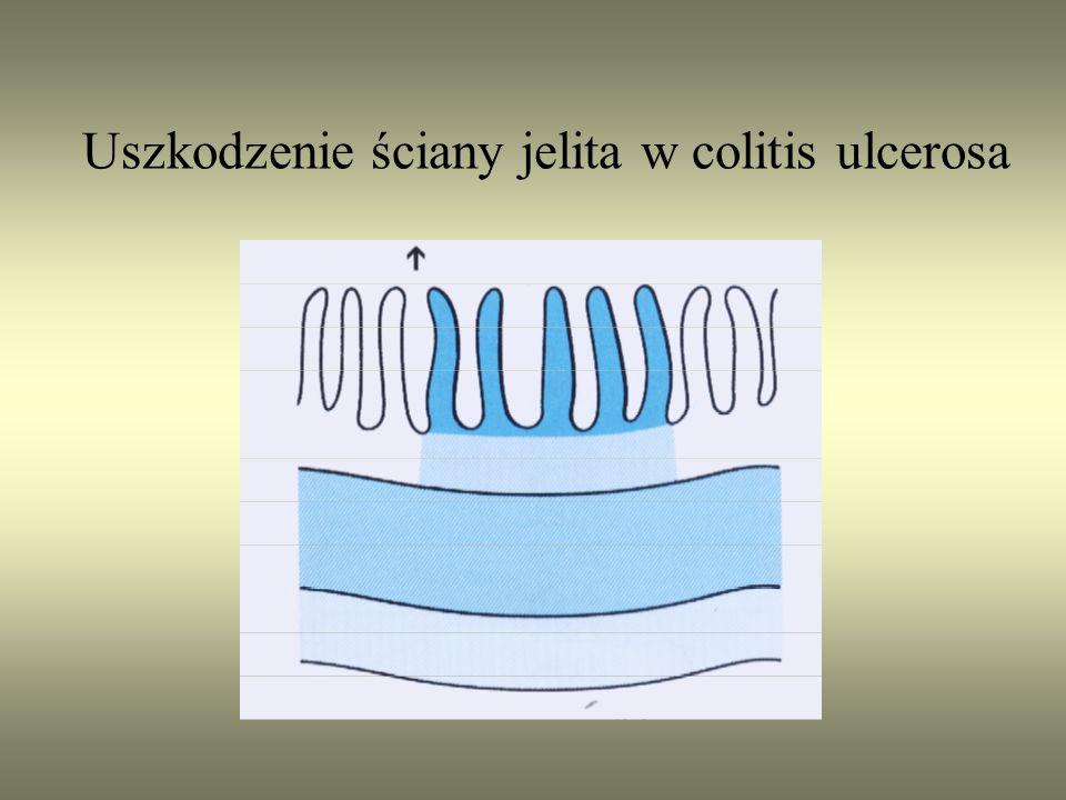Uszkodzenie ściany jelita w colitis ulcerosa