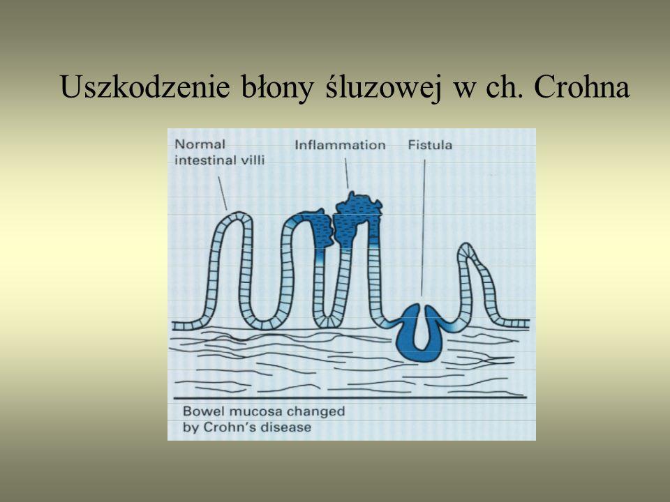 Uszkodzenie błony śluzowej w ch. Crohna