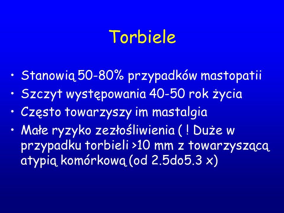 Torbiele Stanowią 50-80% przypadków mastopatii