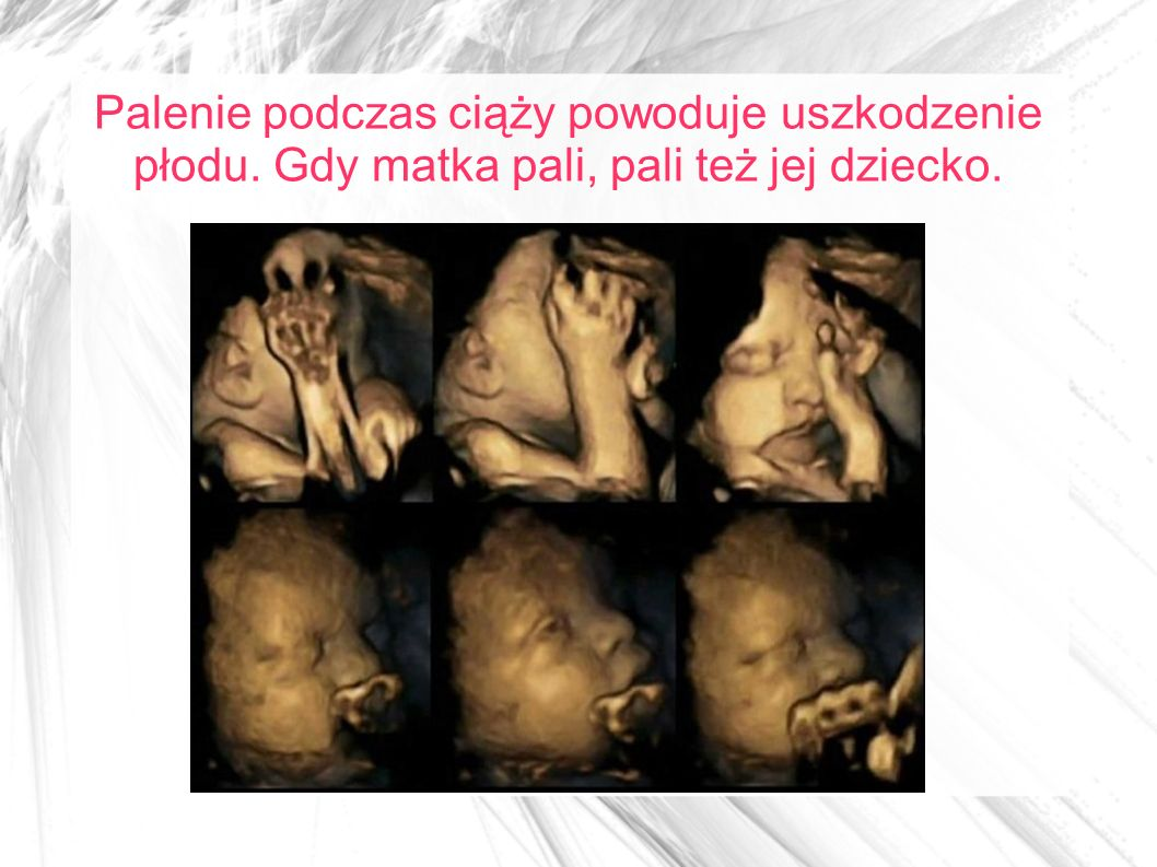 Palenie podczas ciąży powoduje uszkodzenie płodu