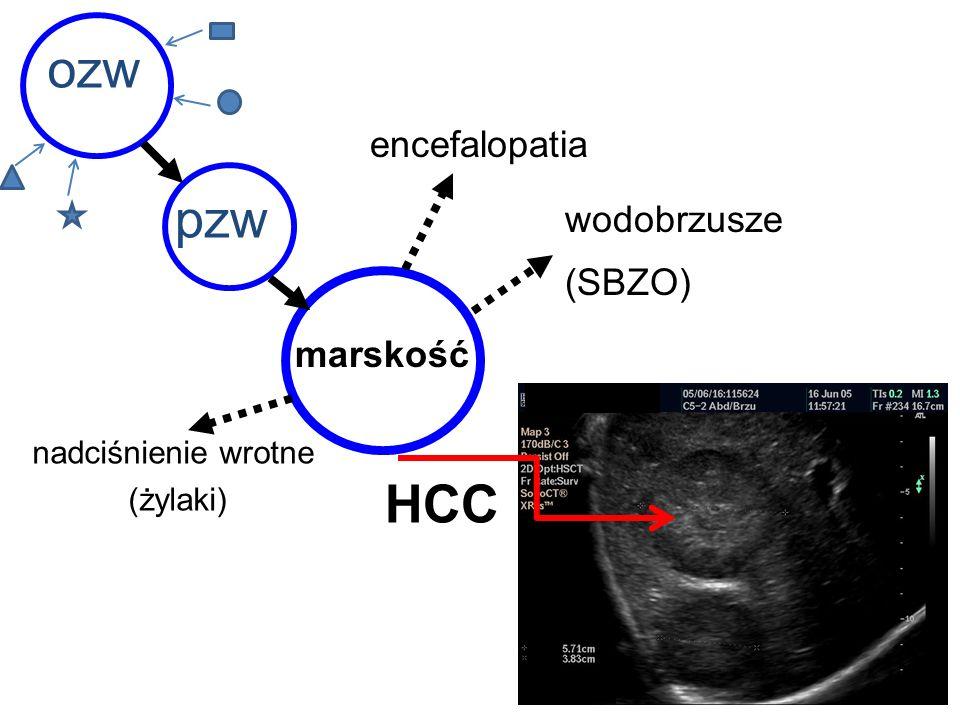 ozw pzw HCC encefalopatia wodobrzusze (SBZO) marskość