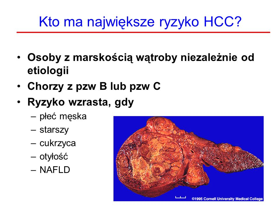 Kto ma największe ryzyko HCC