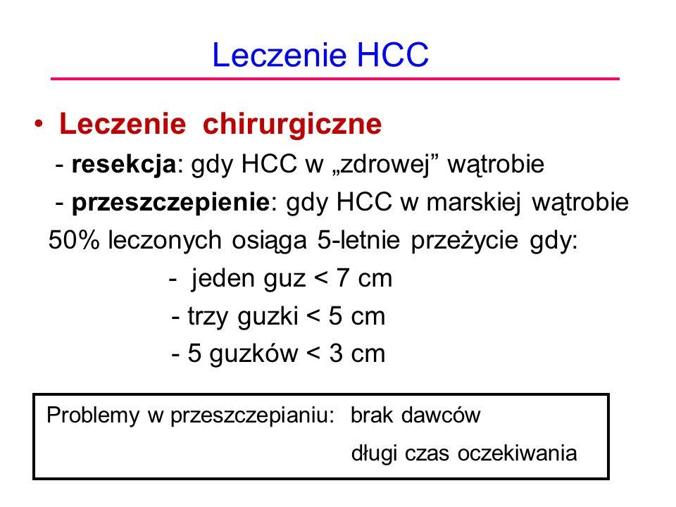 Leczenie HCC Leczenie chirurgiczne