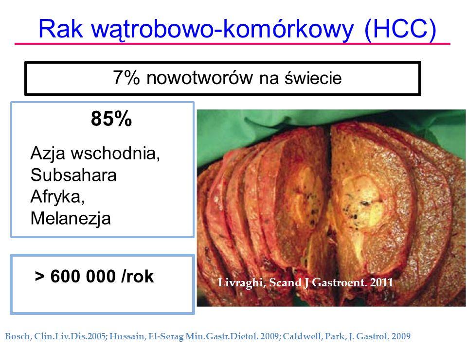 Rak wątrobowo-komórkowy (HCC)