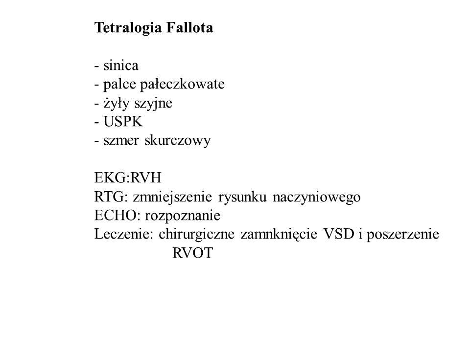 Tetralogia Fallota - sinica. - palce pałeczkowate. - żyły szyjne. - USPK. - szmer skurczowy. EKG:RVH.