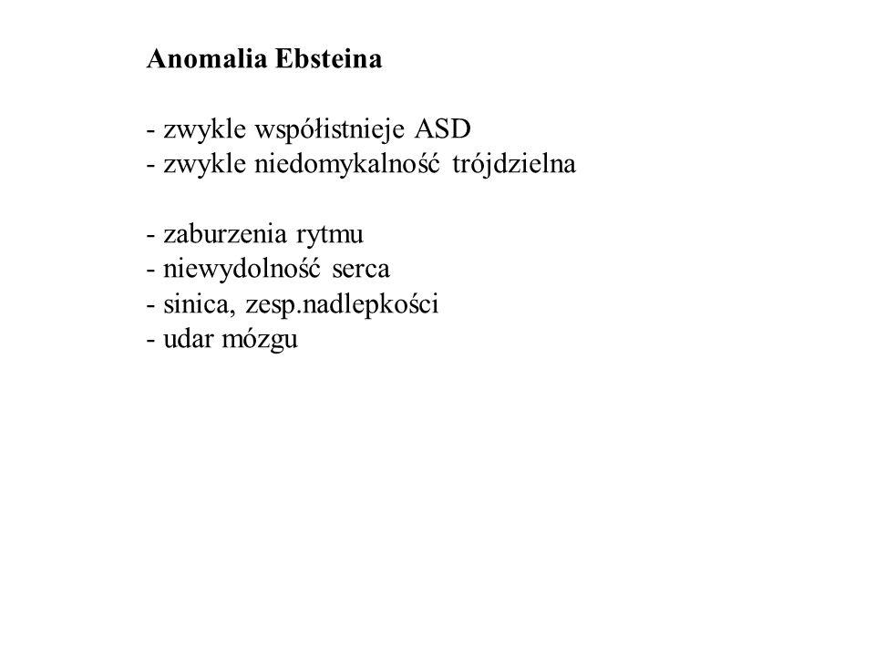 Anomalia Ebsteina - zwykle współistnieje ASD. - zwykle niedomykalność trójdzielna. - zaburzenia rytmu.