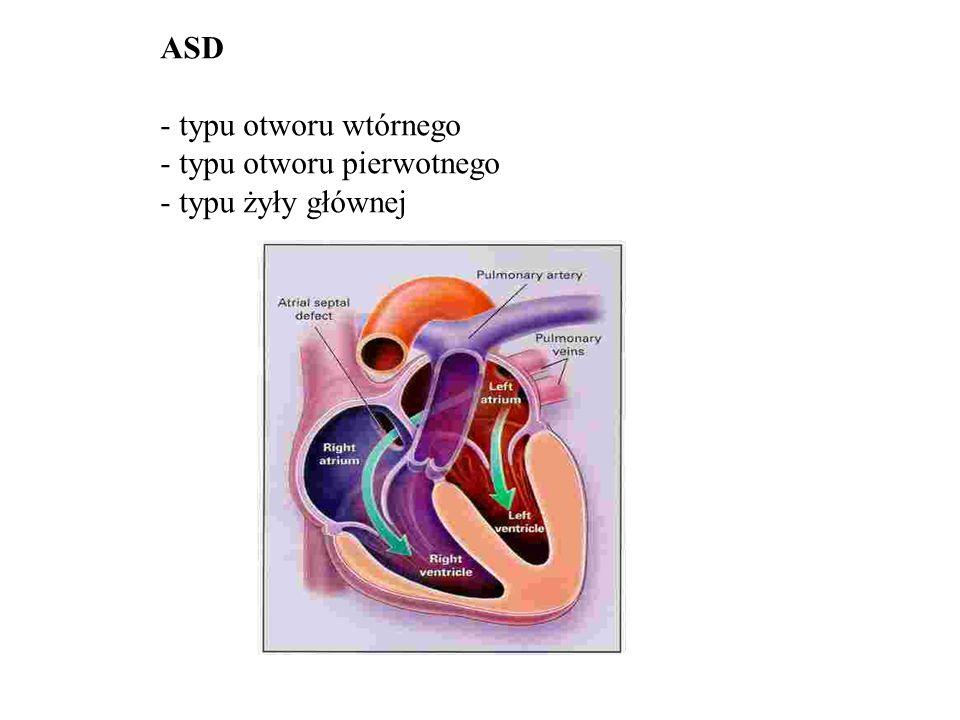 ASD - typu otworu wtórnego - typu otworu pierwotnego - typu żyły głównej