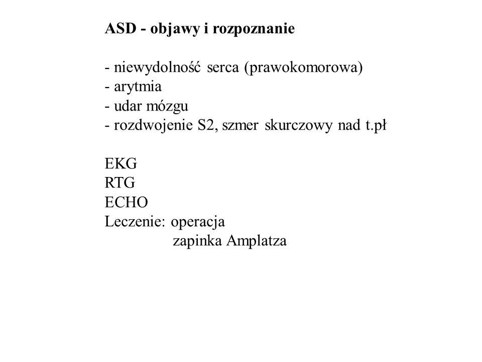 ASD - objawy i rozpoznanie