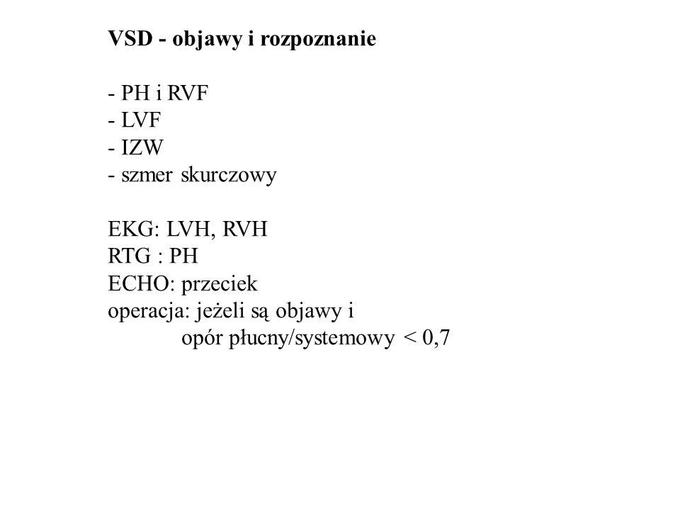 VSD - objawy i rozpoznanie