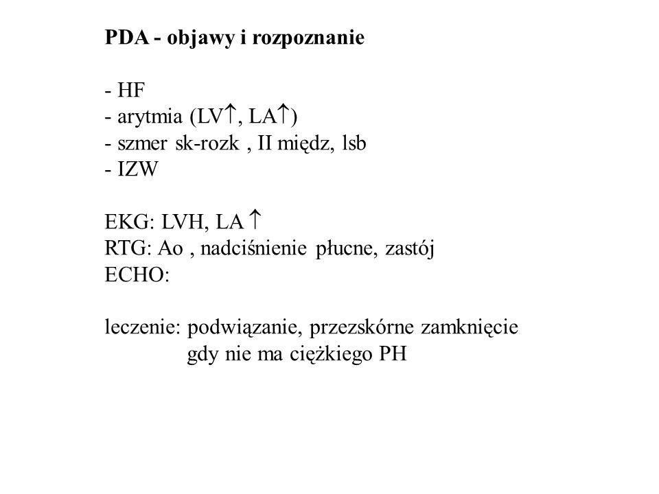 PDA - objawy i rozpoznanie
