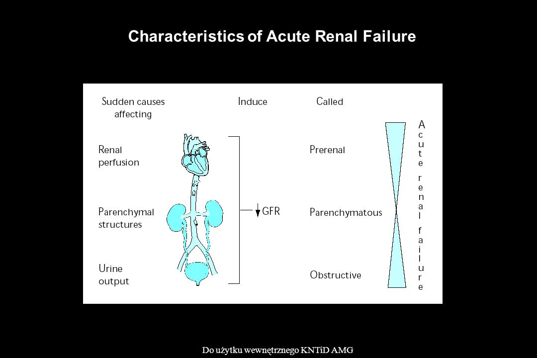 Characteristics of Acute Renal Failure