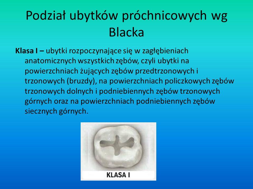 Podział ubytków próchnicowych wg Blacka