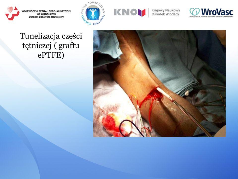 Tunelizacja części tętniczej ( graftu ePTFE)
