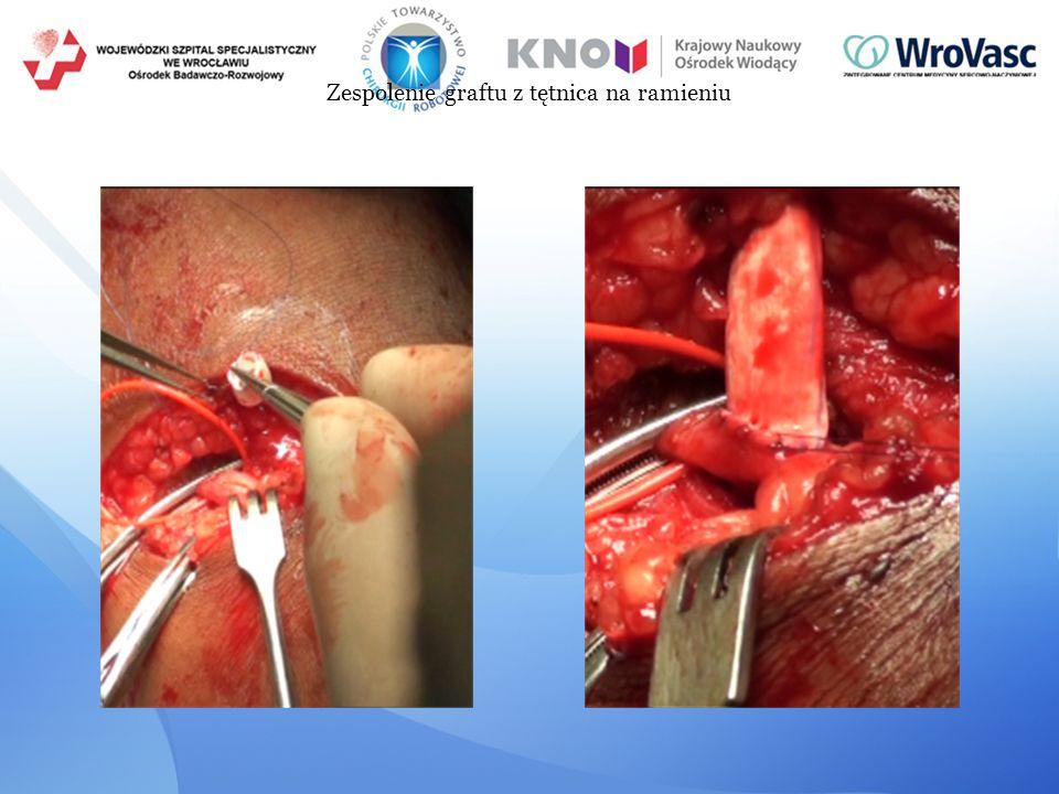 Zespolenie graftu z tętnica na ramieniu