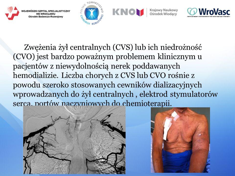 Zwężenia żył centralnych (CVS) lub ich niedrożność (CVO) jest bardzo poważnym problemem klinicznym u pacjentów z niewydolnością nerek poddawanych hemodializie.