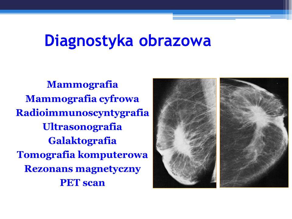 Radioimmunoscyntygrafia Tomografia komputerowa