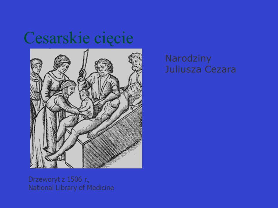 Cesarskie cięcie Narodziny Juliusza Cezara
