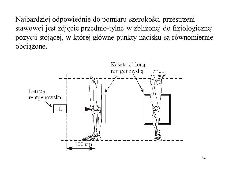 Najbardziej odpowiednie do pomiaru szerokości przestrzeni stawowej jest zdjęcie przednio-tylne w zbliżonej do fizjologicznej pozycji stojącej, w której główne punkty nacisku są równomiernie obciążone.