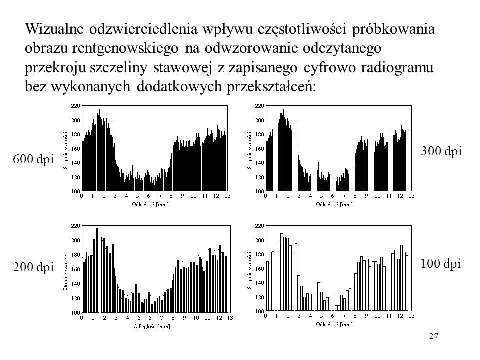 Wizualne odzwierciedlenia wpływu częstotliwości próbkowania obrazu rentgenowskiego na odwzorowanie odczytanego przekroju szczeliny stawowej z zapisanego cyfrowo radiogramu bez wykonanych dodatkowych przekształceń: