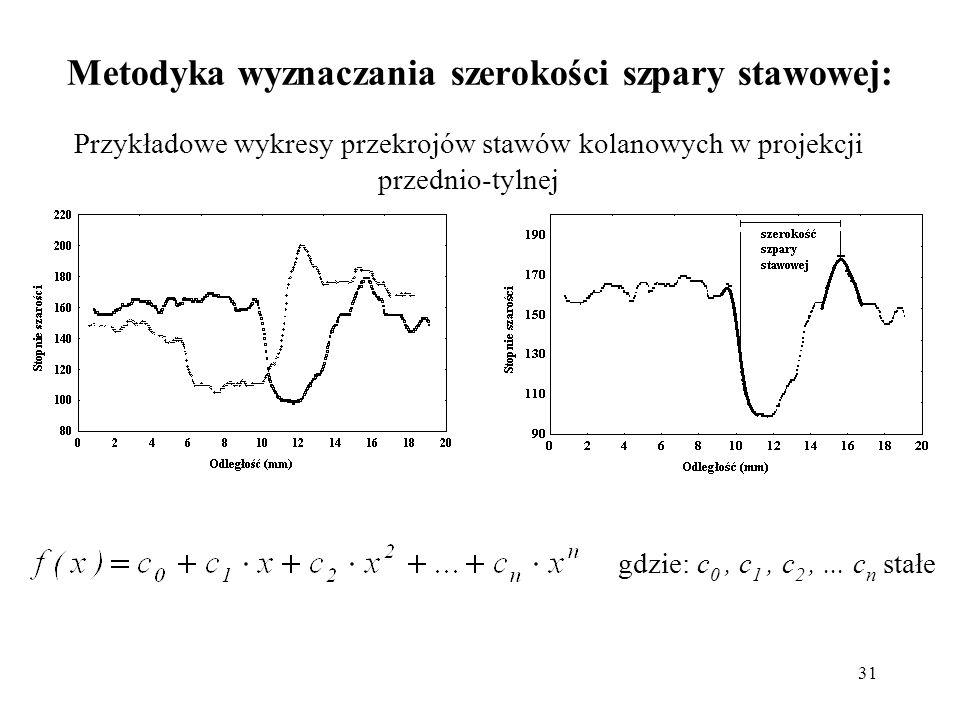Metodyka wyznaczania szerokości szpary stawowej: