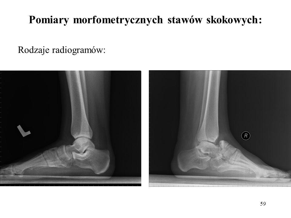 Pomiary morfometrycznych stawów skokowych: