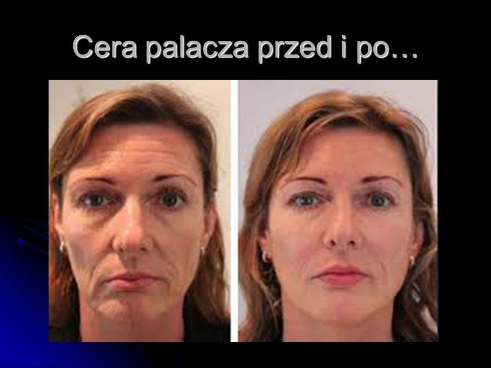 Cera palacza przed i po…