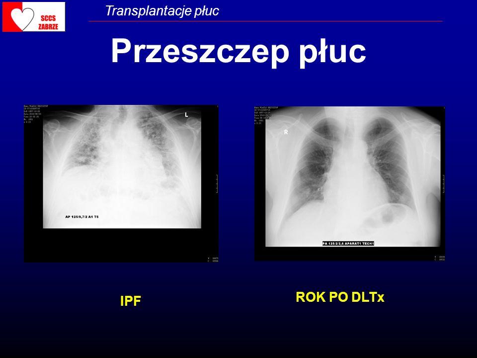 Przeszczep płuc ROK PO DLTx IPF