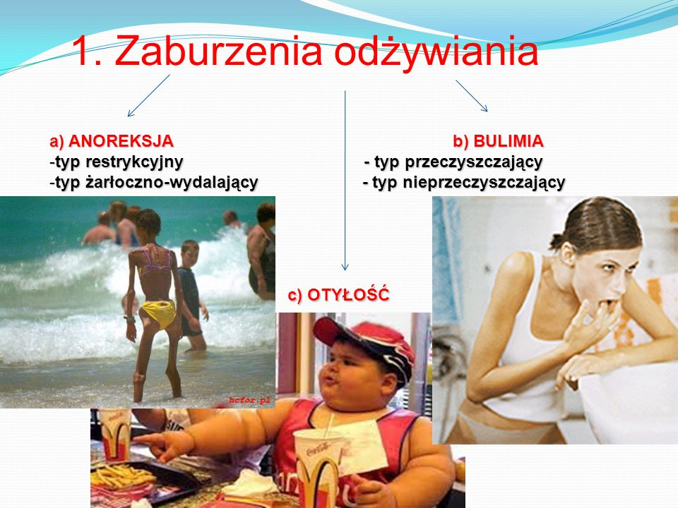 1. Zaburzenia odżywiania